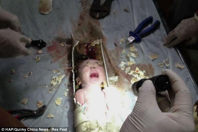 法广   被卡在公寓楼厕所排污管道弃婴获救
