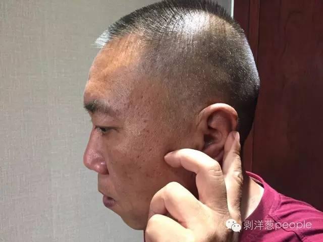 53岁的王金虎,按着自己耳朵上的伤痕。那是送走他时父母留下的。新京报记者罗婷 摄