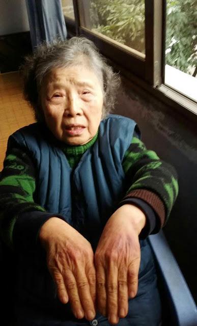 黄琦83岁的母亲展示被公安抓伤的双手