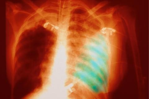财新网 (更新)武汉肺炎患者增至198人 死亡3例