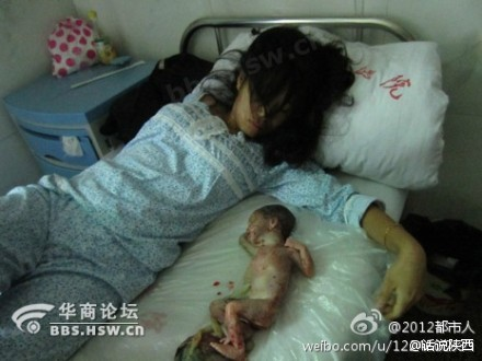 Netizen Rage Over China's Unborn (Updated)