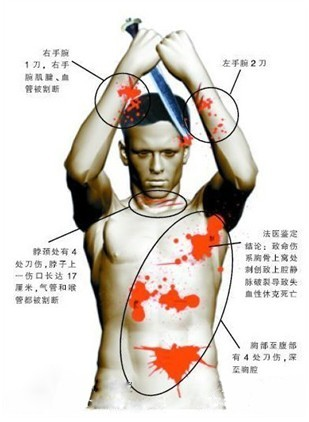 Graphic showing the locations of Mr. Xie's stab wounds.
